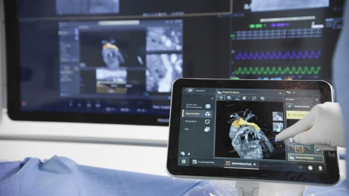 How Image-Guided Therapy can provide the best patient care for cardiovascular patients